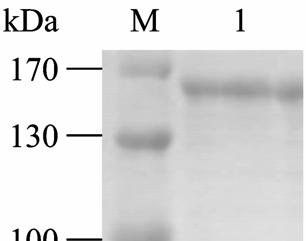 recombinant  M: DNA marker; 1: PCR