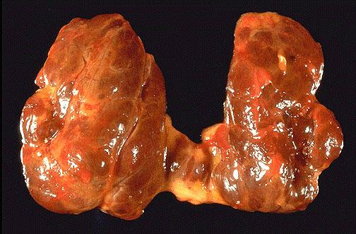 This diffusely enlarged thyroid gland is