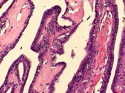 The center is fibrovascular; the