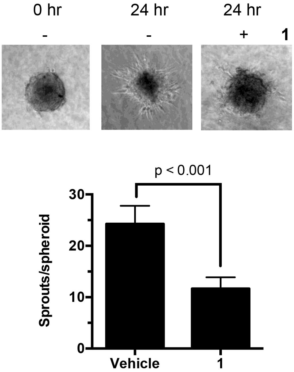 Figure 6: Effect of 1 on β-tubulin protein stability. H630 cells were incubated with cycloheximide (10 μm) in the presence or absence of 1 (20 nm).