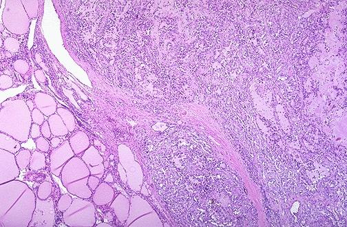 At the center and to the right is a medullary carcinoma of thyroid.